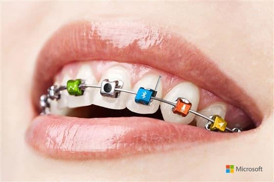 Microsoft Braces.jpg-550x0